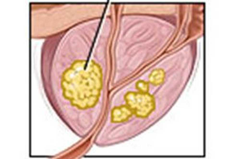 Простатит соль препарат от цистита и простатита