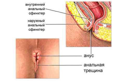 Výhody a nevýhody análního sexu